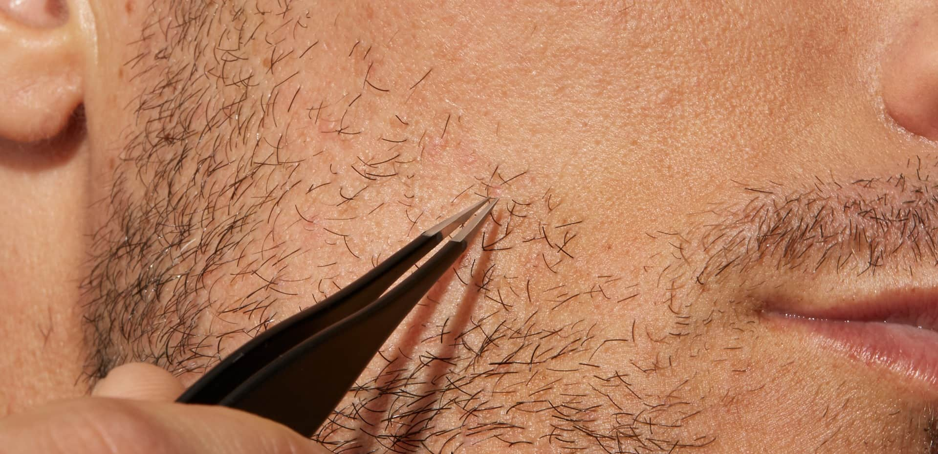 How To Get Rid Of Ingrown Hairs For Men